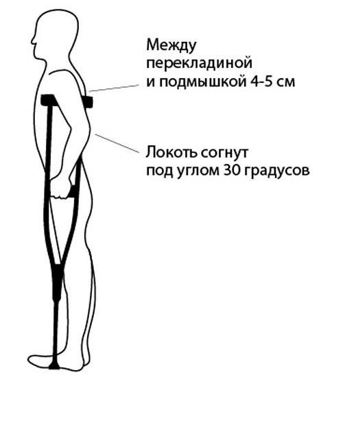 Подбор подмышечных костылей